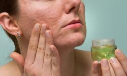 Bật mí 5 cách làm giảm sẹo trên gương mặt nhanh chóng để có làn da mịn màng