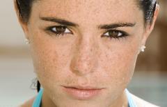 Tại sao ngày càng có nhiều vết nám trên mặt? 5 nguyên nhân này sẽ khiến bệnh phát triển rầm rộ, vì vậy hãy hết sức cảnh giác