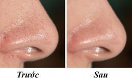9 lời khuyên từ bác sĩ da liễu có thể giúp se khít lỗ chân lông