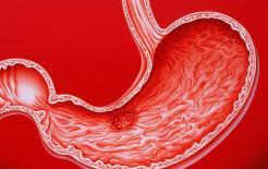 Người bị bệnh dạ dày thường ăn thực phẩm này để bồi bổ và bảo vệ dạ dày, dạ dày ngày một khỏe hơn