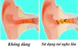 Đây là những điều sẽ xảy ra với cơ thể nếu bạn đeo tai nghe quá lâu