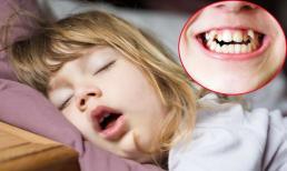 Trẻ thường há miệng khi ngủ, đây là điều bé có thể phải đối mặt trong tương lai