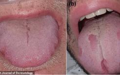 Nghiên cứu của Tây Ban Nha cho thấy: những thay đổi ở miệng, tay, chân là những dấu hiệu mới nhất của SAR CoV-2