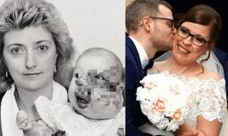 Sinh ra với khối u biến dạng, cô bé bị hàng xóm mỉa mai chỉ trỏ suốt thời thơ ấu để rồi 'vịt hóa thiên nga' trong ngày cưới