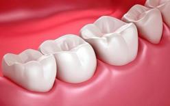 """Ung thư gan, tiên tri răng? Nếu có 4 loại """"bất thường"""" răng miệng này thì nên đề phòng ung thư"""