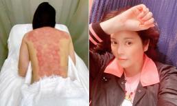 Lý Nhã Kỳ gây chú ý vì đăng ảnh tấm lưng trần chằng chịt dấu đỏ sau khi giác hơi