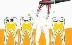 Nhổ răng nên nhổ buổi sáng chứ không nên nhổ buổi chiều, tại sao vậy?