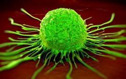 Các dấu hiệu ban đầu của ung thư buồng trứng là gì?