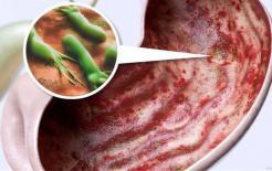 Dạ dày bị nhiễm vi khuẩn Helicobacter pylori, hãy nhớ: ăn ít '3 thứ', ăn nhiều '2 món' dạ dày sẽ cảm ơn