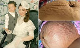 Hòa Minzy lần đầu tiết lộ loạt ảnh 'full không che' những vết rạn khủng khiếp khi mang bầu quý tử