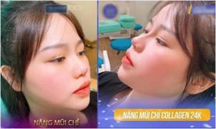 Xôn xao hình ảnh Huỳnh Anh đi nâng mũi, chỉnh sửa gương mặt và sự thật khiến ai cũng bất ngờ