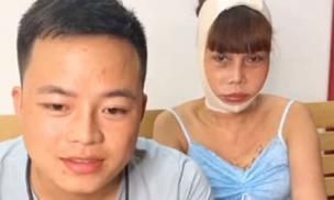 'Cô dâu 62 tuổi' Thu Sao méo miệng, sưng lệch mặt sau phẫu thuật thẩm mỹ