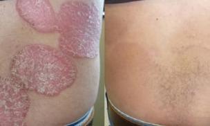 Kiểm soát hiệu quả bệnh vẩy nến bằng kết hợp thảo dược