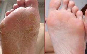 Ung thư gan, tiên tri bàn chân? 3 'hiện tượng' này xuất hiện trên bàn chân, đừng bất cẩn