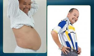 Diễn viên Tam Thanh giảm 6kg nhờ giảm béo tại Bệnh viện thẩm mỹ Gangwhoo
