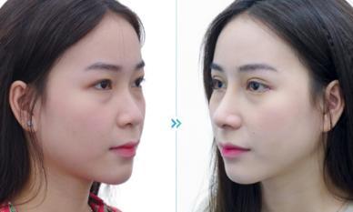 """Viện thẩm mỹ Newface giúp cô gái Sài thành """"lột xác thần kỳ"""" bằng Go-tex"""