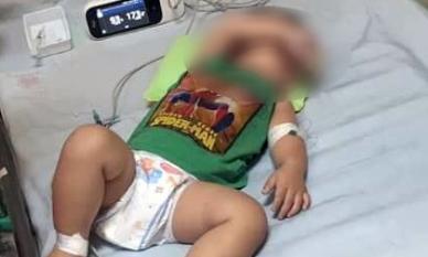 3 chị em ruột ở Hà Nội tử vong do nhiễm vi khuẩn Whitmore