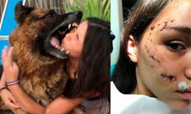 Chơi trội cho đầu vào mồm chó tự sướng, cô gái nhận hậu quả khâu 40 mũi