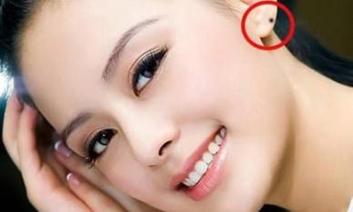 4 nốt ruồi ở tai phụ nữ quý như kim cương, gia chủ cả đời an nhàn sung sướng