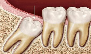Điều gì xảy ra nếu răng khôn dài không được nhổ? Bác sĩ: 4 hiểm họa tiềm ẩn có thể ập đến, đừng bỏ qua