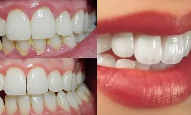 Dành 3 phút buổi tối làm điều này, cả đời chẳng phải đến nha sỹ lấy cao răng