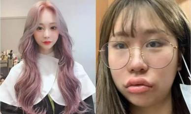 Nhan sắc 'vịt hóa thiên nga' sau phẫu thuật thẩm mỹ của Youtuber nổi tiếng Hàn Quốc