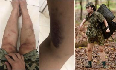 Sau Kỳ Duyên, đến lượt Dương Hoàng Yến đăng cận cảnh đôi chân chi chít vết bầm tím khi tham gia gameshow