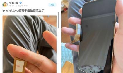 Viền quá sắc nét? Một số cư dân mạng tiết lộ rằng tay của họ đã bị cứa và chảy máu bởi iPhone12!