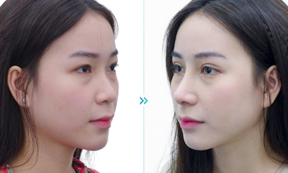 Thẩm mỹ viện Kangnam, nữ Việt kiều, căng da mặt