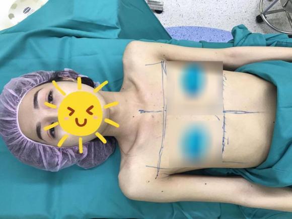 chuyển giới, phẫu thuật thẩm mỹ, hotgirl