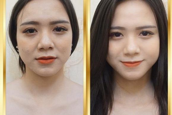 Trẻ hóa da, Làm đẹp không dao kéo, TaTa International Clinic
