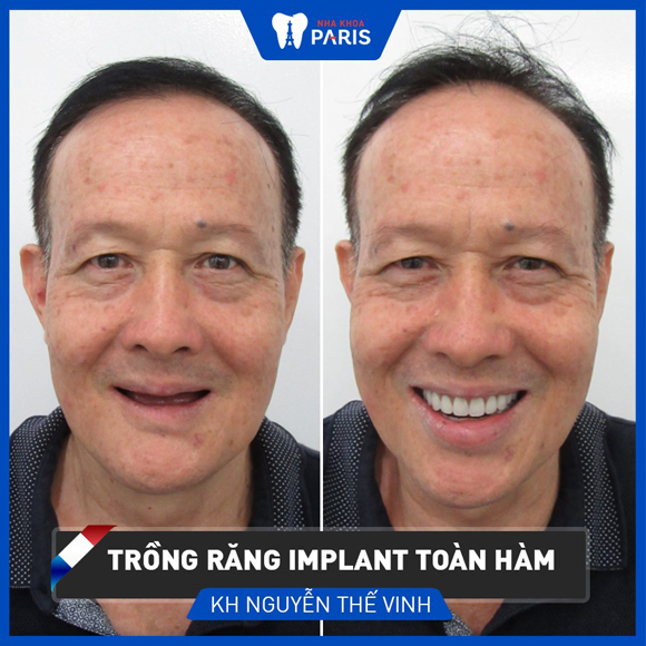 Trồng răng implant, Nha khoa paris
