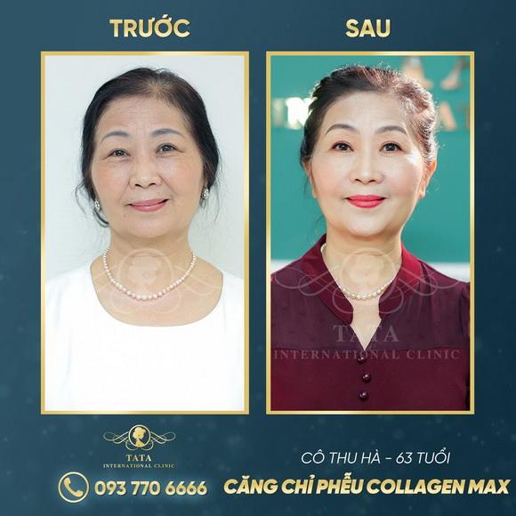 Tata Clinic, Trị vết chân chim quanh mắt, căng chỉ Collagen