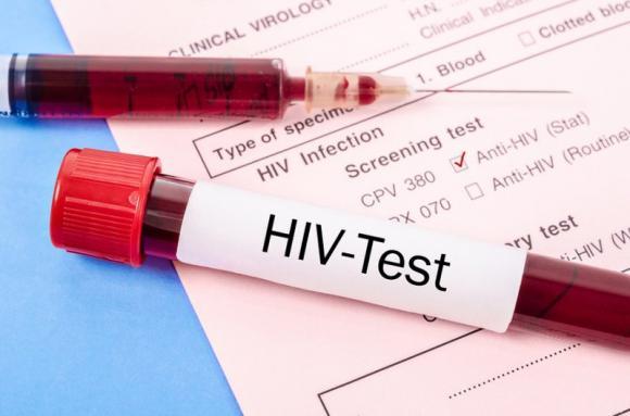 Bệnh AIDS, dấu hiệu của thời kỳ ủ bệnh AIDS, sàng lọc xét nghiệm AIDS