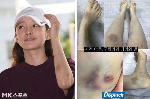 Goo Hara, Choi Jong Beom, sao hàn