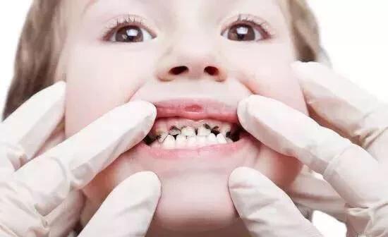 Trẻ có hàm răng cửa to và thưa là tốt hay xấu?
