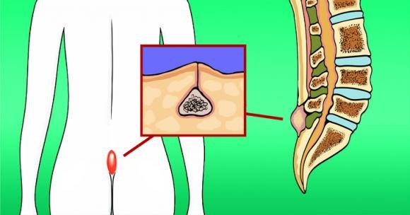 Bệnh Pilonidal, chăm sóc sức khỏe đúng cách, bệnh xoang lông