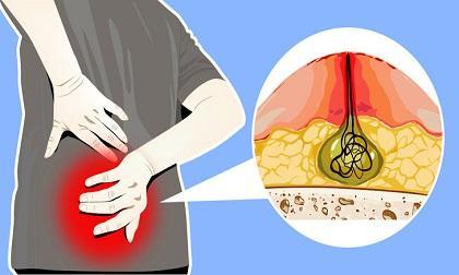 bệnh giang mai, thói quen xấu ảnh hưởng sức khỏe, chăm sóc sức khỏe đúng cách