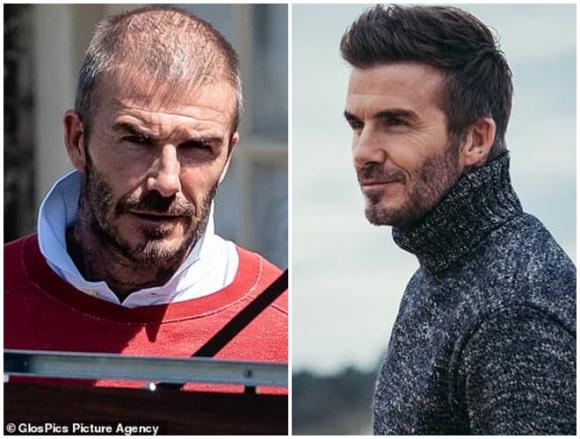 David Beckham,David Beckham hói đầu,sao Hollywood