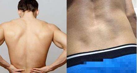 hõm lưng, lúm đồng tiền, venus, lõm eo, đặc điểm cơ thể