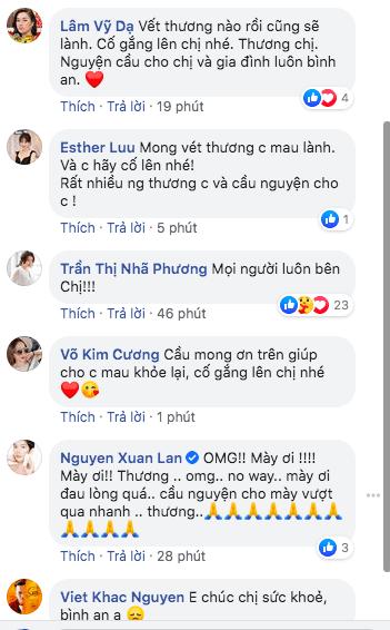 Hồng Ngọc, sao Việt, bỏng mặt