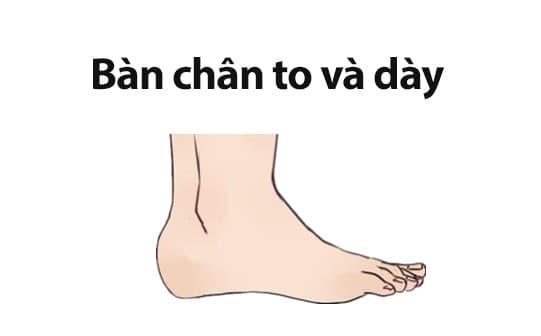 tướng chân, bàn chân