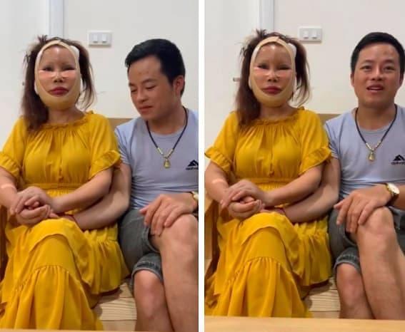 cô dâu 62 tuổi, Thu Sao, cô dâu 62 tuổi dao kéo