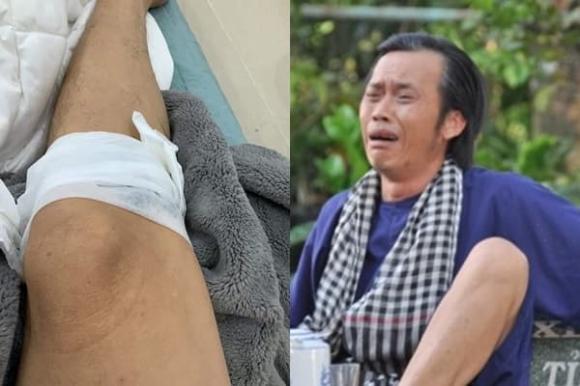 Danh hài Hoài Linh khiến fan lo lắng khi đăng ảnh bị tai nạn chảy máu chân 1