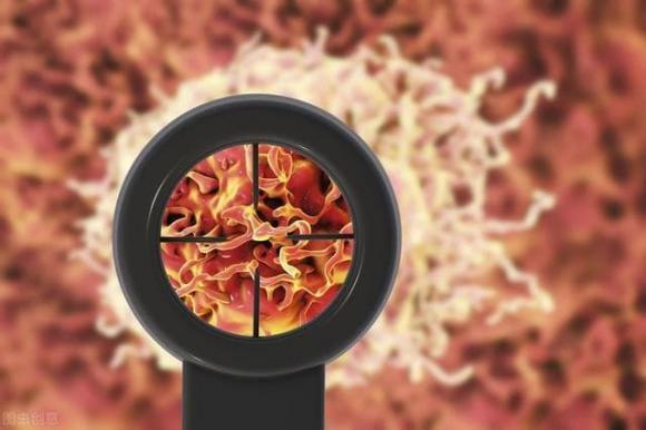 tế bào ung thư, ung thư, dấu hiệu ung thư