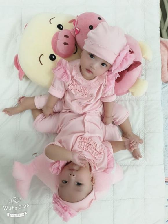2 bé song sinh dính liền, phẫu thuật, tách rời 2 bé song sinh