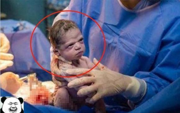 bé sơ sinh, bé chào đời, em bé lạ