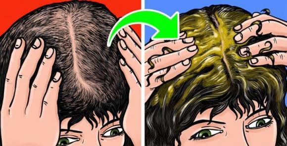 cách trị hói, cách mọc tóc, cách giúp tóc dày