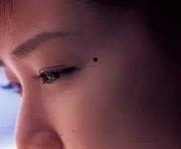 nốt ruồi, nốt ruồi của phụ nữ, nốt ruồi trên mặt, xem tướng