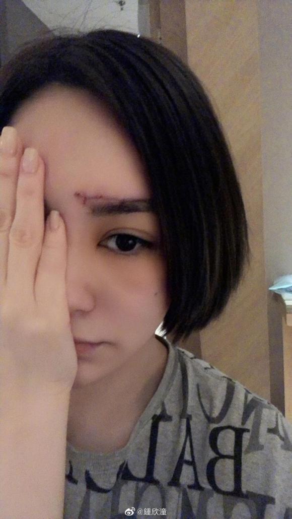 chung hân đồng, chấn thương đầu, sao hong kong